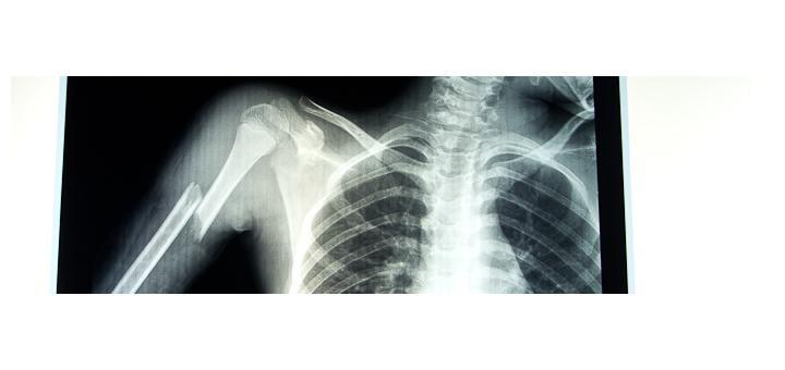 X-Ray of Zac's Broken Arm.