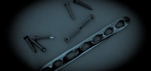 Plate and screws removed from Zac's arm.